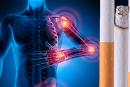 SANTE : Le tabac favorise le développement de maladies rhumatologiques