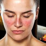 TABAGISME : Les fumeuses deux fois plus exposées au risque de Lupus.